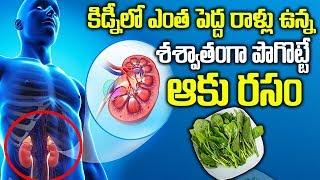 ఈ ఆకుతో శాశ్వతంగా కిడ్నీలో రాళ్లు పోగొట్టండి | Malabar Spinach Benefits For Kidney Stones | SumanTV