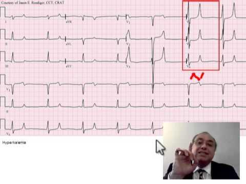 ECG T WAVE