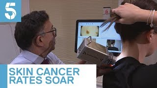 Skin cancer cases up by 45% in a decade | 5 News