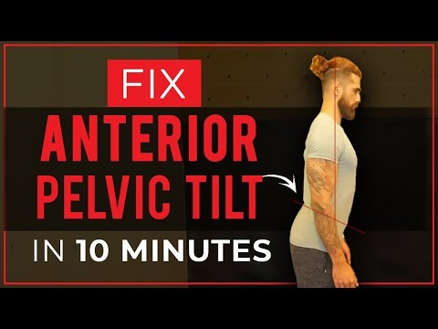 How To Fix ANTERIOR PELVIC TILT in 10 Mins (Best Stretches and Exercises) | Improve Your Posture - UC7imP-cJhytGgRFC0HvayVQ