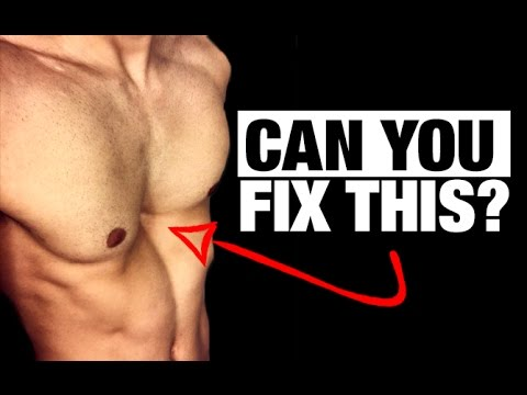 how to get rid of a concave chest