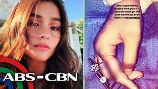 Liza Soberano, lumipad sa US para ipaopera ang kanyang fractured finger   UKG