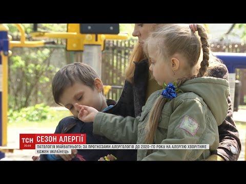 Через погану екологію, їжу та стреси кожна п'ята дитина в Україні страждає на алергію