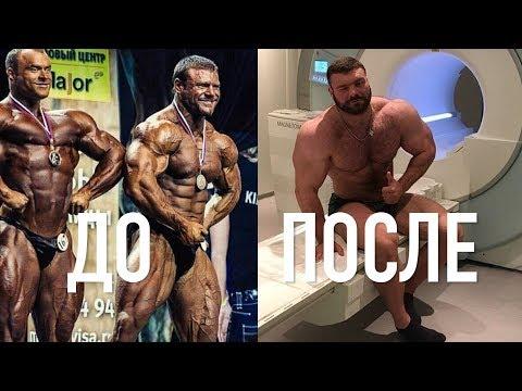 ЧУТЬ НЕ УМЕР ОТ СИНТОЛА - Александр Щукин / моя история