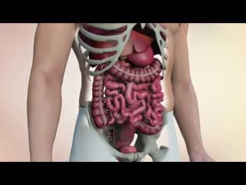 Colon cancer: Essential facts