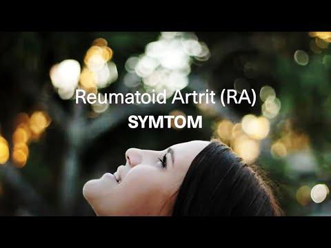 Symtom vid reumatoid artrit