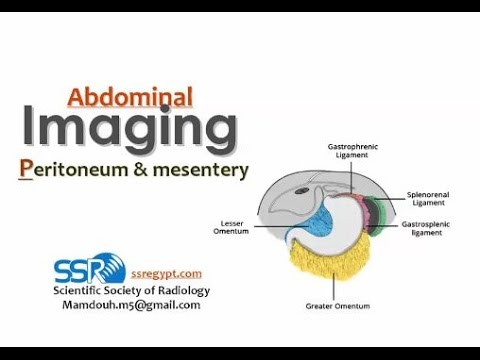 Imaging of Peritoneal lesions - Prof. Dr. Mamdouh Mahfouz (In Arabic)
