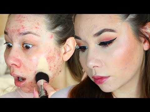 Maybelline Super-Stay Full Coverage for ACNE?!?! - UCg4h2uo4j_2QXynuFCF30Pg