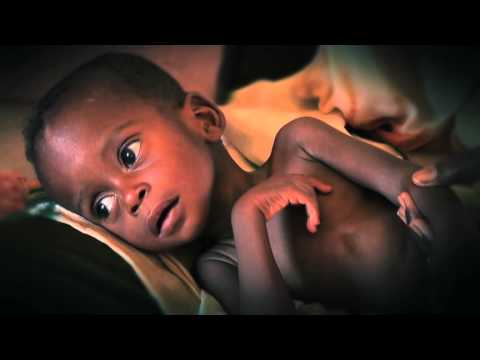 UNICEF - These Children Are Facing Death Every Day Ad