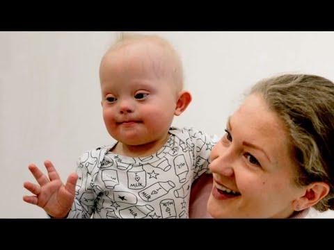 Why Richard Dawkins Says to Abort Down Syndrome Kids