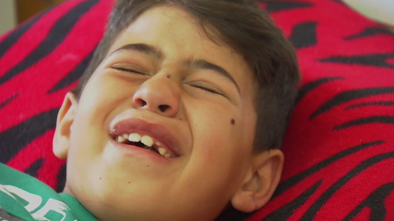 Children among Gaza air strike injured in hospital