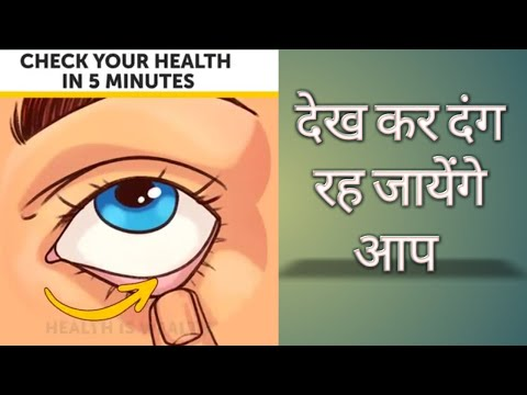 Check your health in 5 minutes | complete health assessment