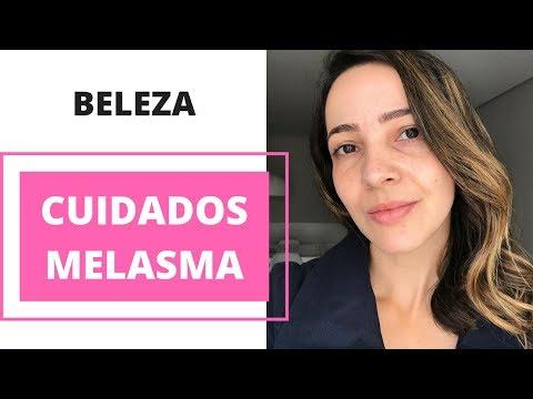 Como evitar e tratar o Melasma na pele | Dicas da Fê