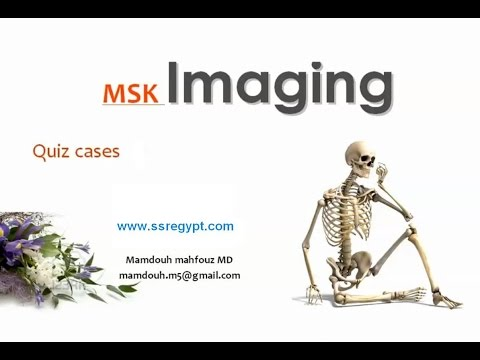 Musculoskeletal imaging Radiology quiz I -Prof. Dr. Mamdouh Mahfouz (In Arabic)