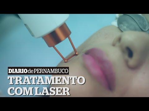 Publivídeo: Laser Fracionado Não Ablativo