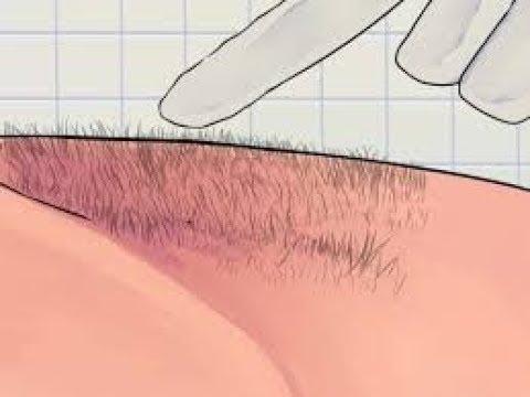 طريقة سهلة جداا للتخلص من شعر العانة  للابد