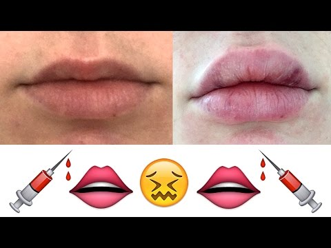 My Honest Experience With Lip Injections | Lauren Curtis - UCXbQzhqSvgVZTUyi1T4AU3w