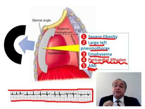 ECG QRS VOLTAGE AMPLITUDE