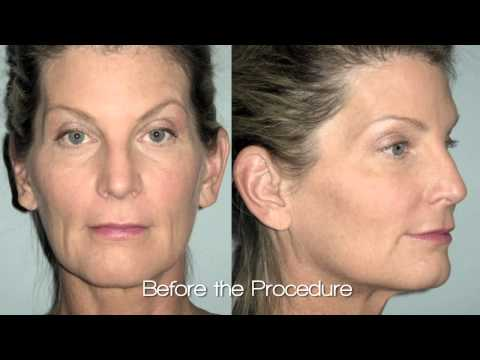 Dr. Spies Facelift Video