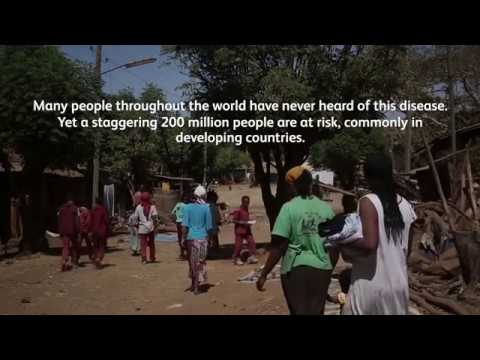 The Community Impact of Trachoma