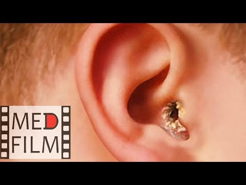 Гноетечение из уха . Нистагм. Отит © Suppuration of the ear. Nystagmus. Otitis photo