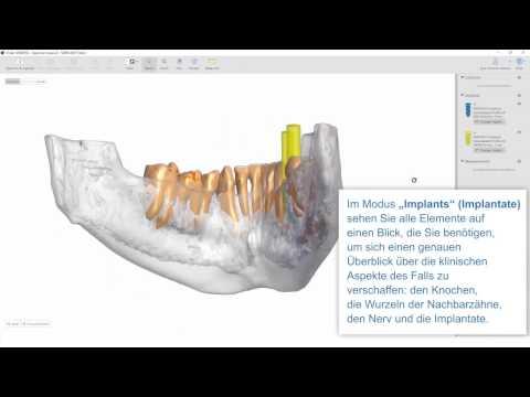 mySimplant |   Schrittweise Überprüfung Ihrer Planung