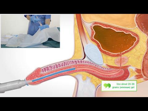 Catheterization with indwelling catheter (Man)