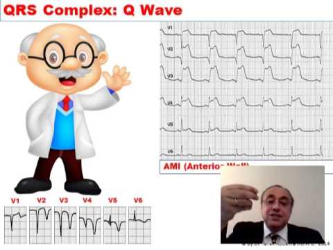 ECG Q WAVE