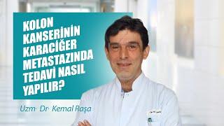 [Video] Kolon kanserinin karaciğer metastazında tedavi nasıl yapılır? - Dr. Kemal Raşa