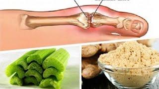 dieta para controlar acido urico alto valor normal del acido urico en embarazadas acido urico y gota es lo mismo