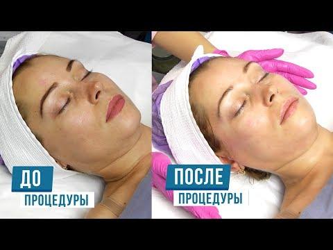 Очищение Питание Насыщение кожи кислородом + Лифтинг эффект photo