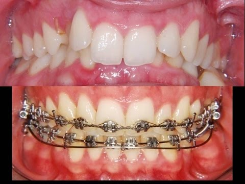 Amazing Deep Bite Correction: Orthodontist!