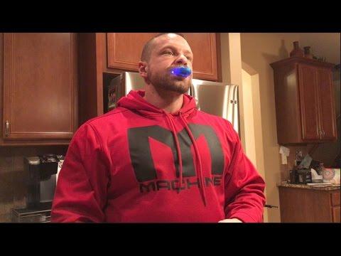 Marc Lobliner Tries Teeth Whitening Day 2