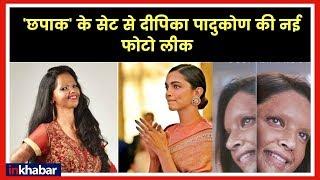 Deepika Padukone as Laxmi Agarwal in film Chhapaak छपाक फिल्म में दीपिका पादुकोण, वायरल हुई Photo