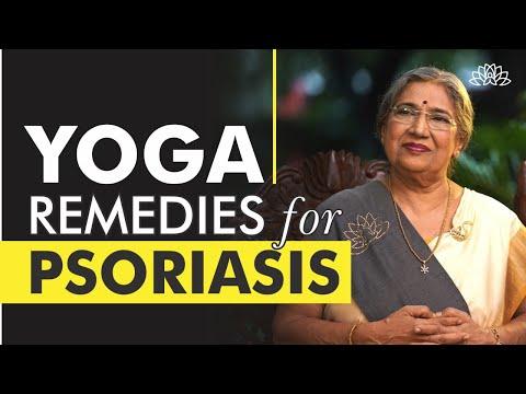 Best Home Remedies for Psoriasis | Dr. Hansaji Yogendra