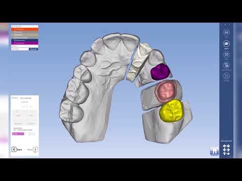 Planmeca PlanCAD Premium – Semi-Automatic tooth placement
