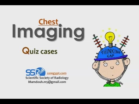 Chest imaging quiz I -Prof Dr. Mamdouh Mahfouz (In Arabic)
