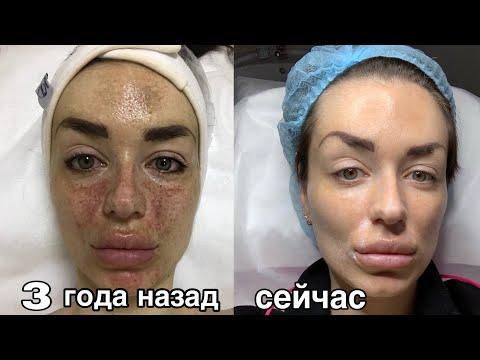 что НА САМОМ ДЕЛЕ помогло | опасная кислота 🧪 борьба за кожу