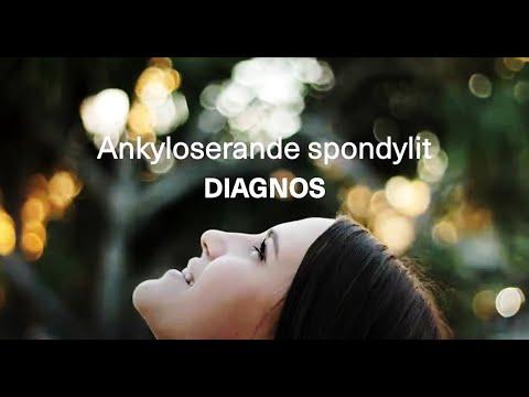 Diagnos av ankyloserande spondylit