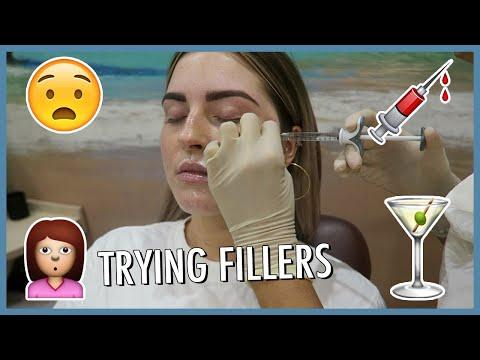 I TRIED FILLERS ????? Vlog 597