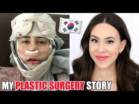 I GOT PLASTIC SURGERY IN KOREA || Double Jaw Surgery - UCp3_Zq16GNd-uBVHM8hYQlg
