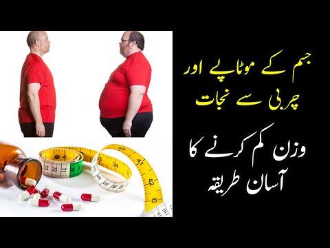 Obesity & Treatment Option -  Hakim Rukh Nasreen Agha