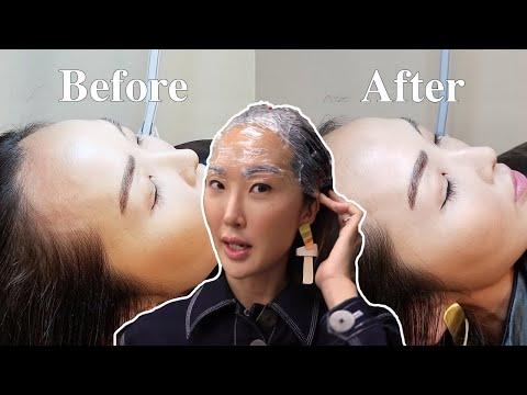 I Got My Hairline Microbladed for my Receding Hairline - UCZpNX5RWFt1lx_pYMVq8-9g