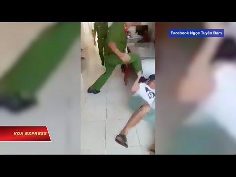 Tranh cãi vụ công an đạp mặt dân (VOA)