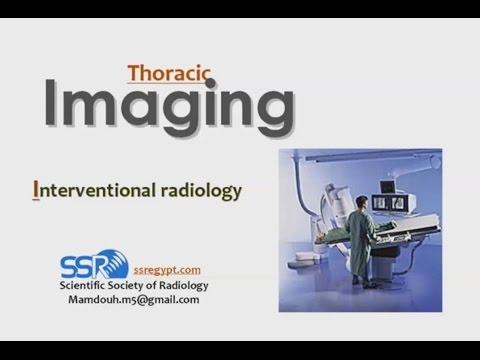 Thoracic Interventions - Prof Dr. Mamdouh Mahfouz (In Arabic)