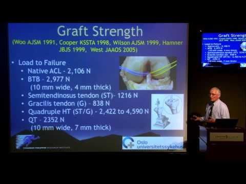 Treatment of ACL by Prof. Lars Engebretsen