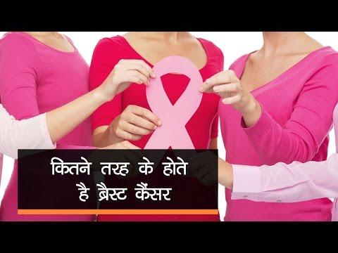 कितने तरह के होते हैं ब्रेस्ट कैंसर - Onlymyhealth.com