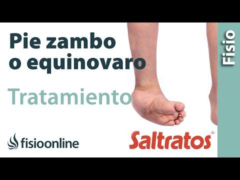 Pie equino, zambo - Qué es, causas y tratamiento
