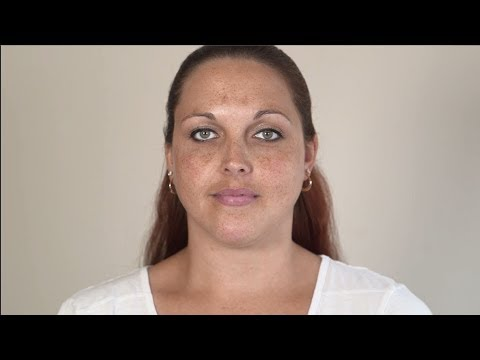 Leben mit Acne inversa – Taras Weg zur Diagnose