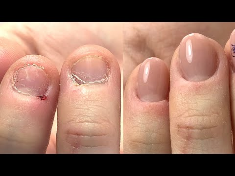 Short Bitten Nails & Skin Transformation